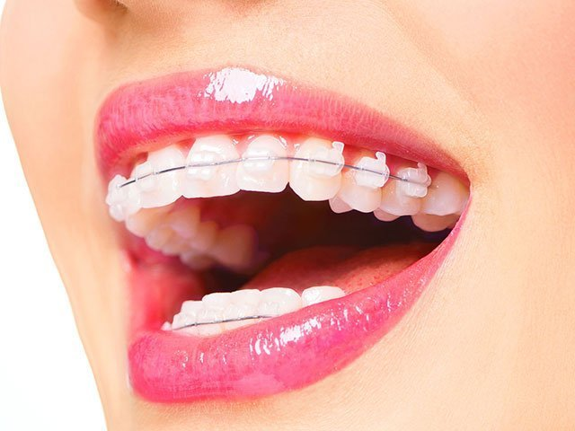 Clear Braces in Woodbridge VA