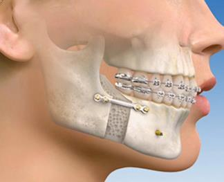 Surgical orthodontics