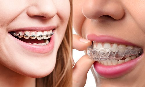 Braces or Clear Aligners