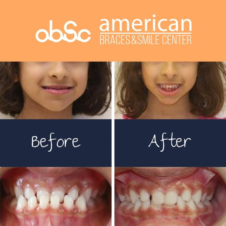 Anterior Crossbite in Primary dentition using maximum amount of growth to avoid/minimize future surgery