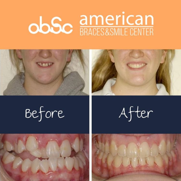 Combination of surgery and orthodontics