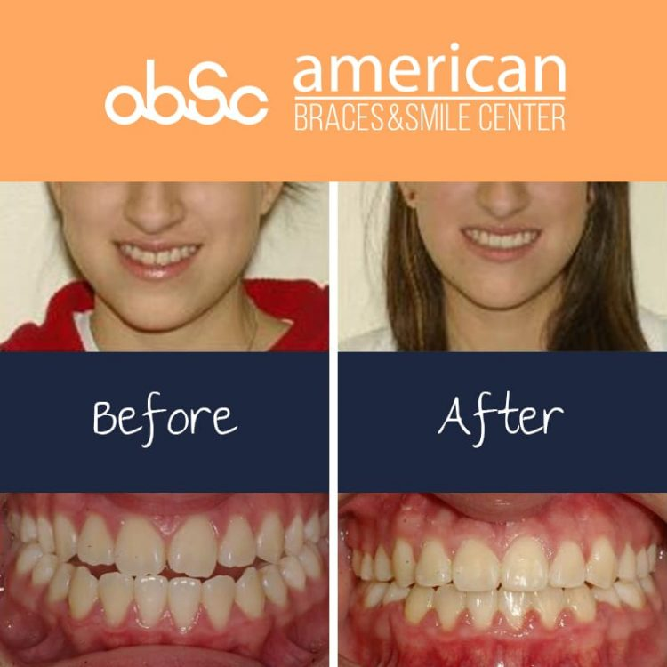 Underbite/Open Bite Treatment where patient treated with extraction