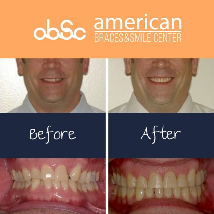Crowding Treatment and correcting crossbite