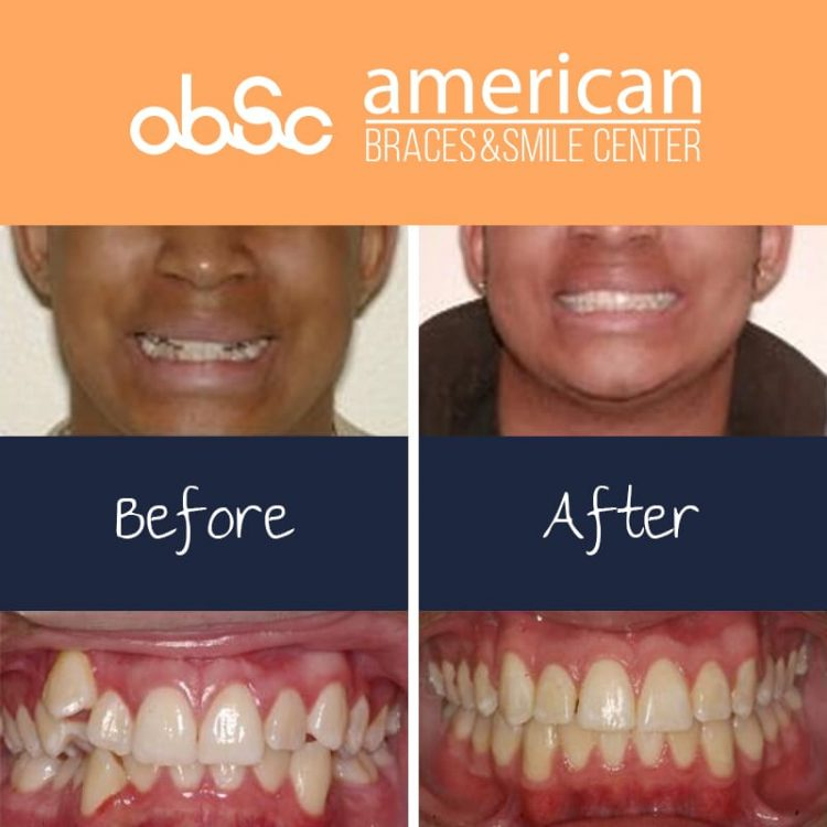 Straightening teeth without Extraction