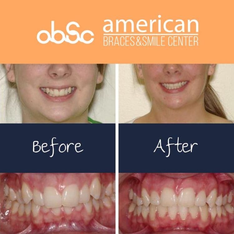 Deepbite or overbite is where upper front teeth excessively covers lower teeth