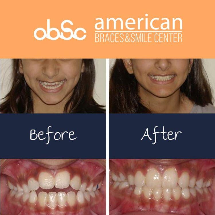 Open Bite Orthodontic Treatment