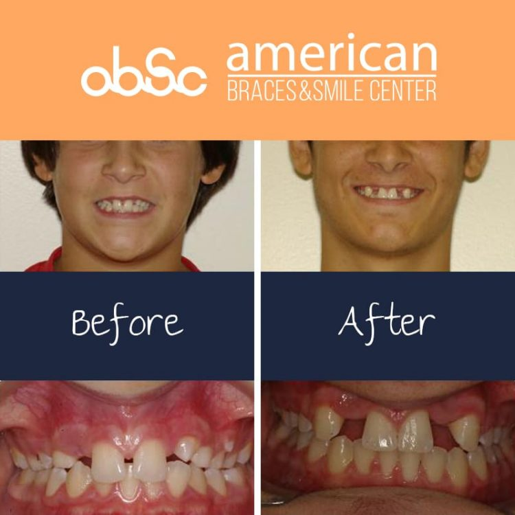 Missing teeth and spacing fixed and later restored