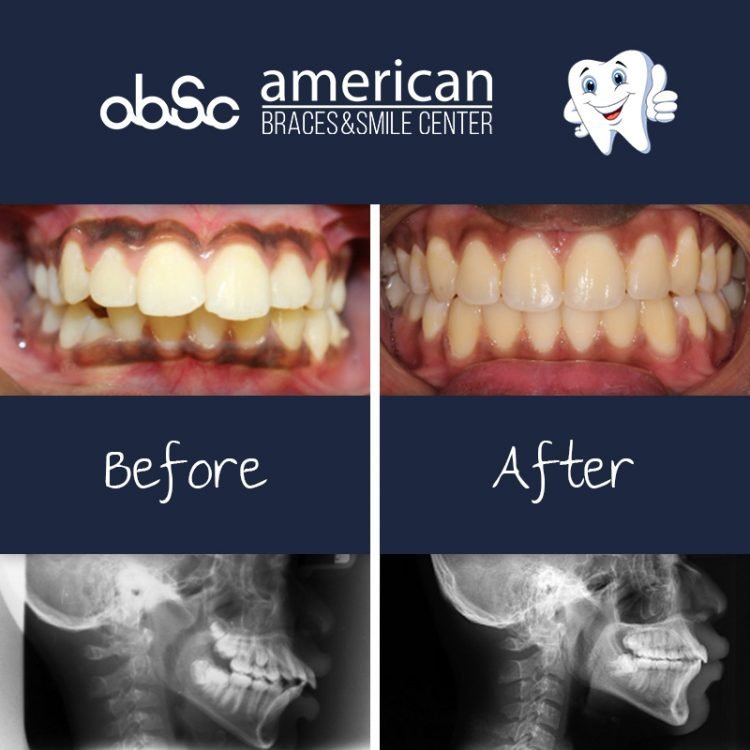 before and after braces treatment